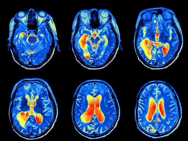Come viene utilizzato un DaTscan per diagnosticare il morbo di Parkinson?